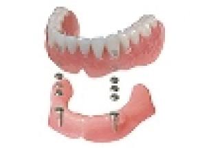 磁性体義歯